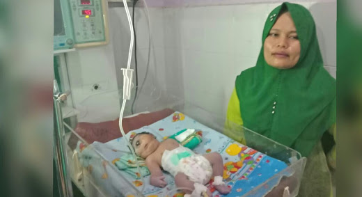 MEMATIKAN...Mengenal Cyclopia, Kondisi yang Dialami Bayi Perempuan Bermata Satu Tanpa Hidung di Madina